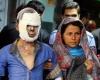 ارتفاع حصيلة ضحايا الاحتفالات النارية في ايران الى قتيل و343 مصابا